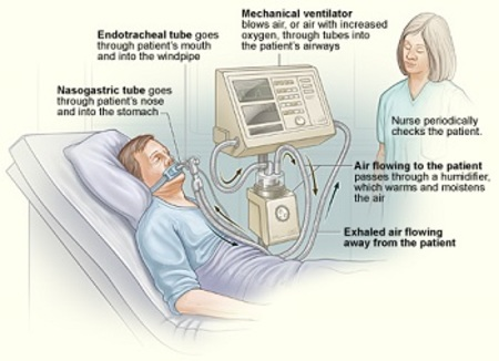 Explanation of how a mechanical ventilator works.